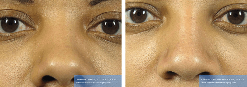 Non Surgical Nosejob - Before and After treatment photo, female, front view, patient 47