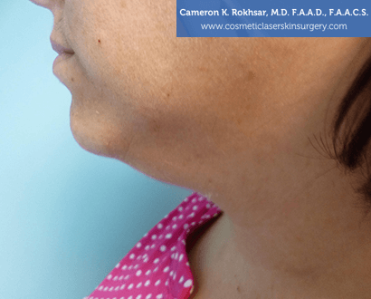 Non-Surgical Chin Job - Before Treatment photo, female - left side view, patient 3