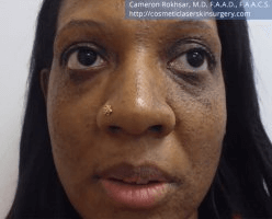 Woman's face, After Birthmarks Treatment - front view, patient 2