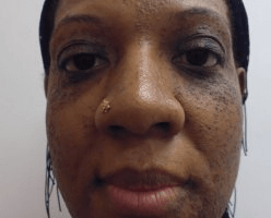 Woman's face, Before Birthmarks Treatment - front view, patient 2