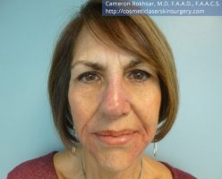 Non Surgical Nosejob - After treatment photo, female,front view, patient 15