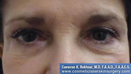 Non-Surgical Eye Lift - Before Treatment Photo - front view, female patient 3