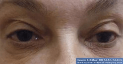 Non-Surgical Eye Lift - Before Treatment Photo - female patient 2