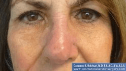 Non Surgical Nosejob - After treatment photo, female,front view, patient 14