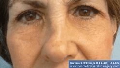 Non Surgical Nosejob - Before treatment photo, female,front view, patient 14
