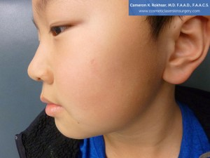9 year old boy, face, After Birthmarks Treatment - left side view, patient 3