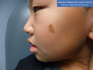9 year old boy, face, Before Birthmarks Treatment - left side view, patient 3