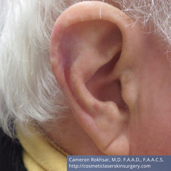 Skin Cancer - Mohs Surgery - After Treatment Photo - patient 1