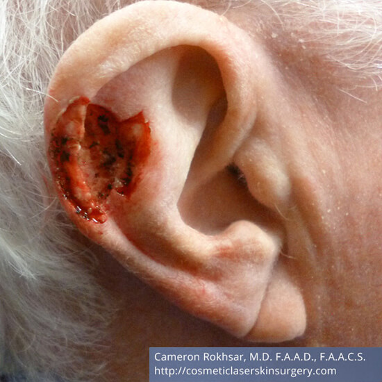 Skin Cancer - Mohs Surgery - Before Treatment Photo - patient 1