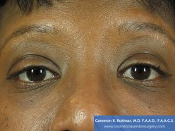 Non-Surgical Eye Lift - After Treatment Photo - patient 1