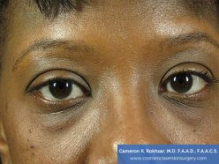 Non-Surgical Eye Lift - Before Treatment Photo - patient 1