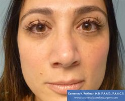 Non Surgical Nose Job Images - After Treatment Photo - patient 1