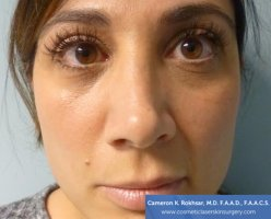 Non Surgical Nose Job Images - Before Treatment Photo - patient 1