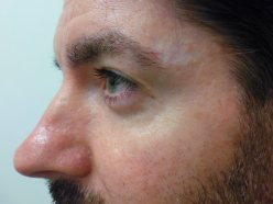 Birthmark Removal Gallery - After Treatment Photo - patient 1