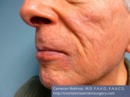 Mohs Surgery - After Treatment photo, left side,oblique view, male patient 4