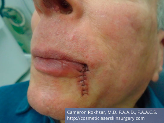 Mohs Surgery - Before Treatment photo, left side,oblique view, male patient 4