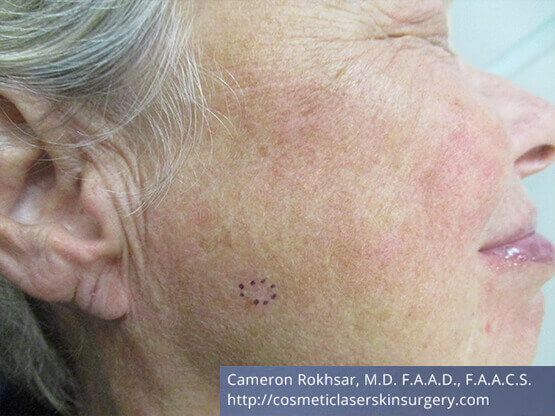 Mohs Surgery - After Treatment photo, right side view, female patient 3