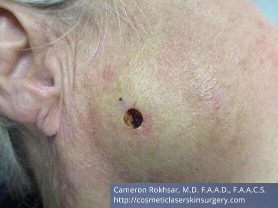 Mohs Surgery - Before Treatment photo, right side view, female patient 3