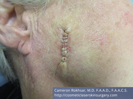 Mohs Surgery - Before Treatment photo, right side view,female patient 3