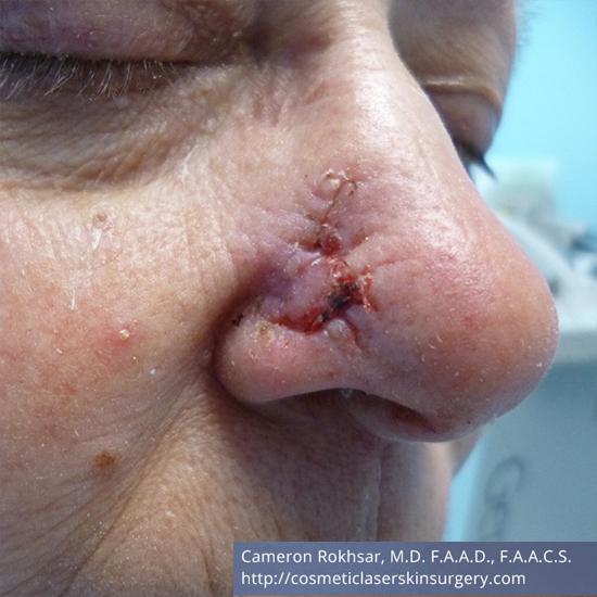 Mohs Surgery - After Treatment photo, left side, oblique view,male patient 2