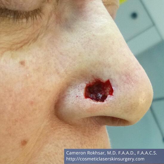 Mohs Surgery - Before Treatment photo, oblique view, male patient 2