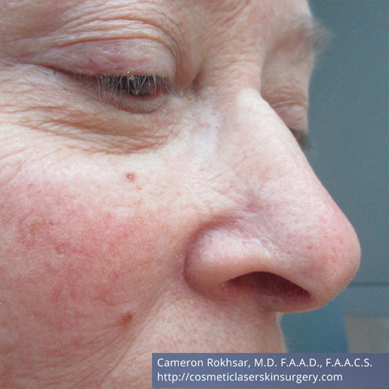 Mohs Surgery - After Treatment photo, oblique view, male patient 2