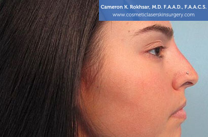 Non Surgical Nosejob - After treatment photo, female,right side view, patient 12
