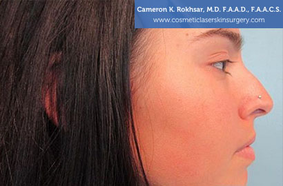 Non Surgical Nosejob - Before treatment photo, female,right side view, patient 12