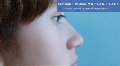 Non Surgical Nosejob - Before treatment photo, female,right side view, patient 11