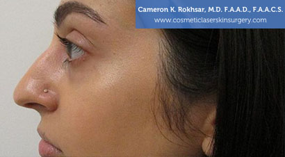 Non Surgical Nosejob - Before treatment photo, female,left side view, patient 10