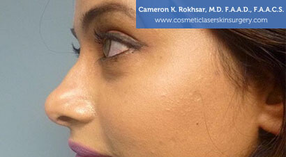 Non Surgical Nosejob - Before treatment photo, female,left side view, patient 8
