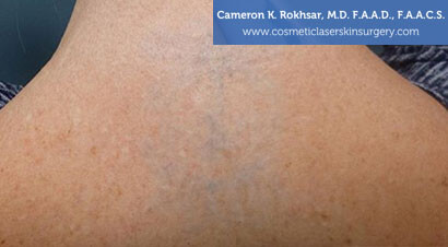 Tattoo Removal - Before treatment photo, female,back side oblique view, patient 2