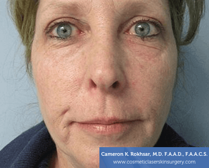 Age/Brown Spots - After Treatment Photo: female, front view, patient 2