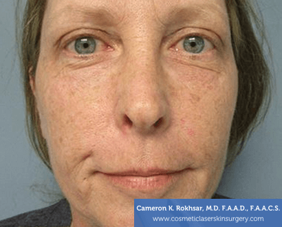 Age/Brown Spots - Before Treatment Photo: female, front view, patient 2