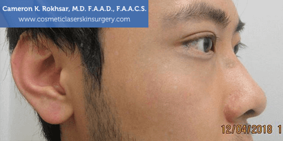 Birthmarks. After treatment photo - male, right side view, patient 10