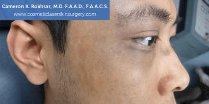 Birthmarks. Before treatment photo - male, right side view, patient 10