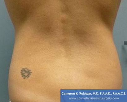 Liposuction - Before Treatment Photo, back view - female patient 1