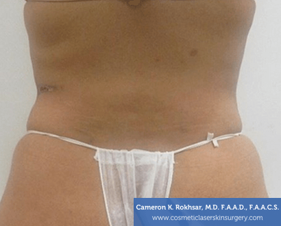 Liposuction - After Treatment Photo, back view - female patient 2