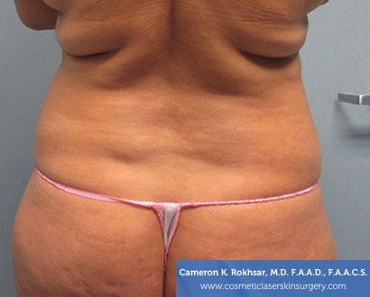 Liposuction - Before Treatment Photo, back view - female patient 2