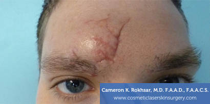 Scar Revisions - Before Treatment photo, male - front view, patient 1