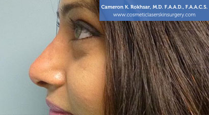Non Surgical Nosejob - After treatment photo, female,left side view, patient 8
