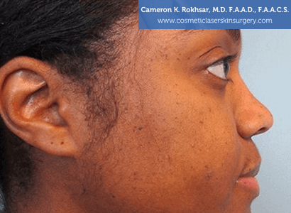 Age/Brown Spots - After Treatment Photo: female, right side view, patient 1