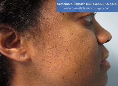 Age/Brown Spots - Before Treatment Photo: female, right side view, patient 1