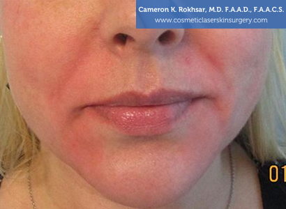 Fillers. After Treatment photo, female - front view, patient 1