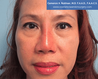 Non Surgical Nosejob - After treatment photo, female,front view, patient 4