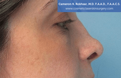 Non Surgical Nosejob - Before treatment photo, female,right side view, patient 5