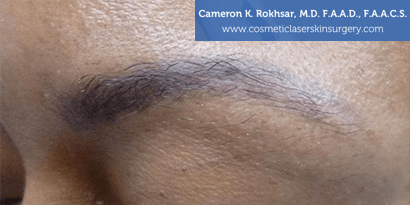 Tattoo Removal - Before and After treatment photo, female,left side oblique view, patient 1