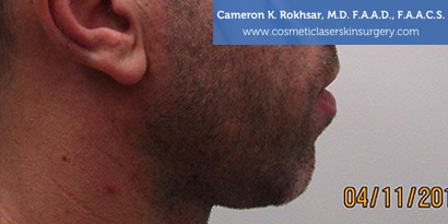 Non-Surgical Chin Job - Before Treatment photo, male - right side view, patient 1