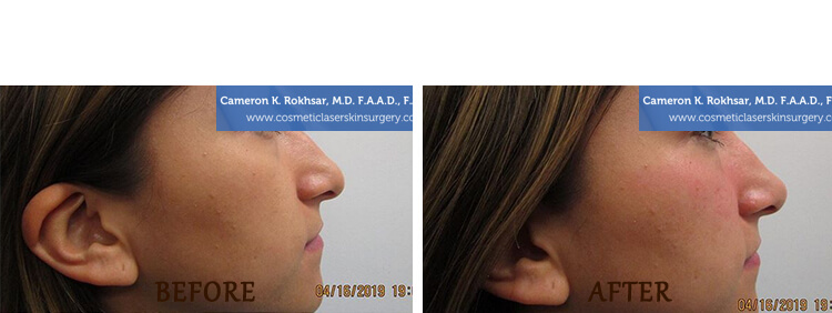 Non Surgical Nose Job: Before and After Treatment Photo - patient 1