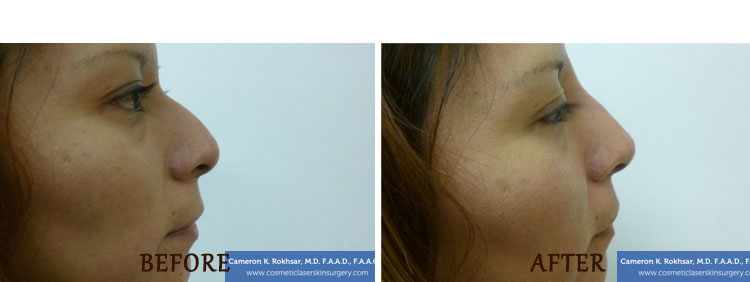Non Surgical Nose Job: Before and After Treatment Photo - patient 5